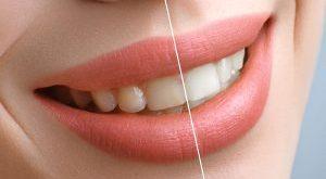نکات بعد از بلیچینگ دندان