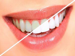 بلیچینگ دندان مشهد