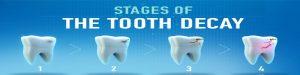مراحل پوسیدگی دندان