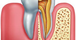 درمان ریشه | عصب کشی دندان