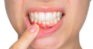 آبسه دندان چیست