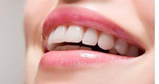 نکات بعد از لمینت دندان