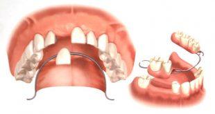 مراقبت بعد از پروتز های دندانی