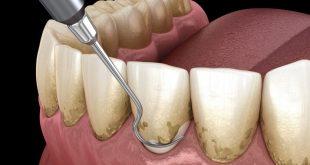 روش جرمگیری دندان