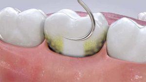 نکات بعد از جرمگیری دندان